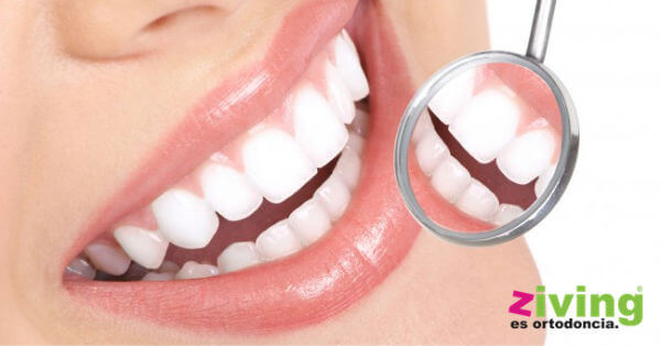 Blanqueamiento Dental Ziving
