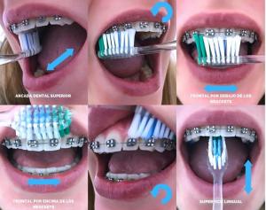 tecnicas de higiene-ziving