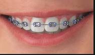 comida y ortodoncia