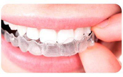 ¿Tendre que usar retenedores despues de la ortodoncia??