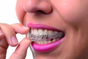 invisalign ziving ortodoncia palma de mallorca