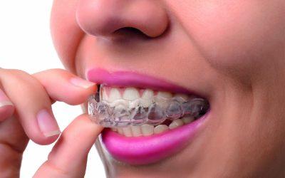 """""""La ortodoncia no es simplemente estética"""""""